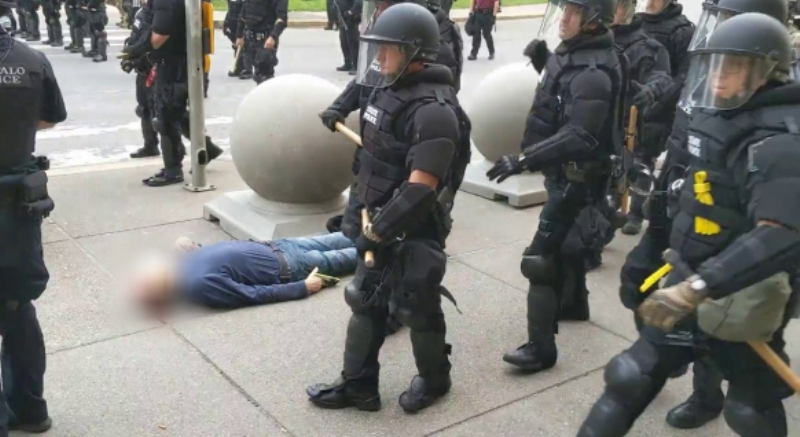The 75-year-old is the victim of police brutality in the United States